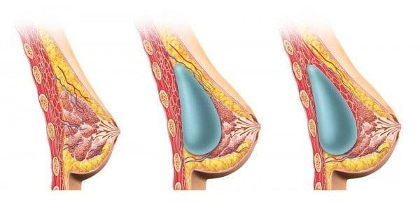 prothèses mammaires-augmentation mammaire