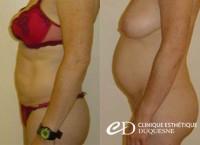 liposuccion douce résultats