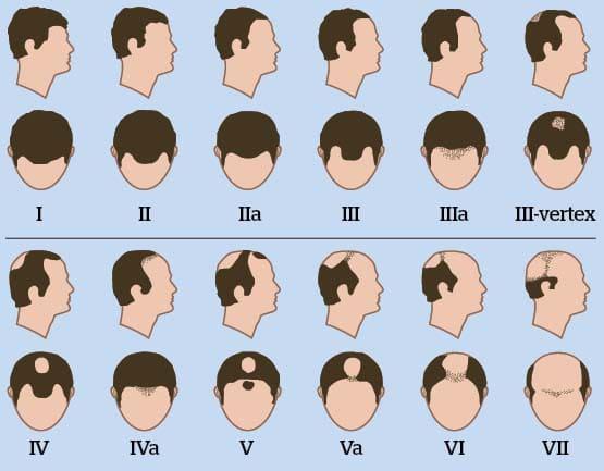 Le masque des oeufs de la croissance des cheveu