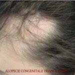 alopécie congénitale