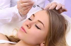 Traitement de la calvitie de la femme par la mésothérapie avec plaquettes