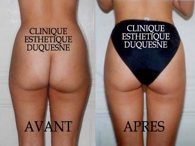 liposuccion douce photo