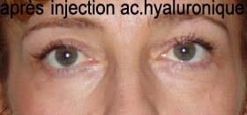 Résultat injection d'acide hyaluronique pour les cernes
